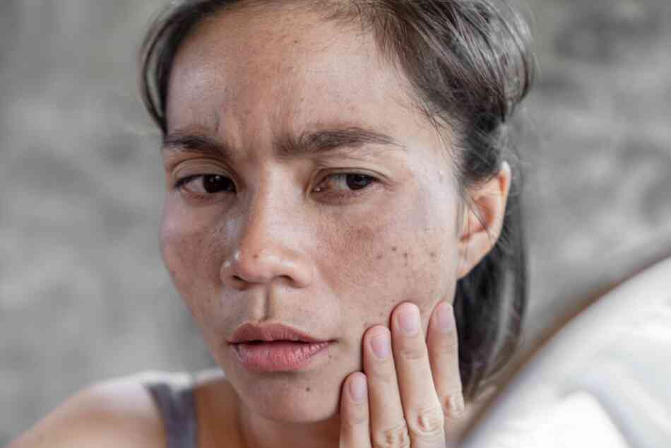 Ways pregnancy can change your skin